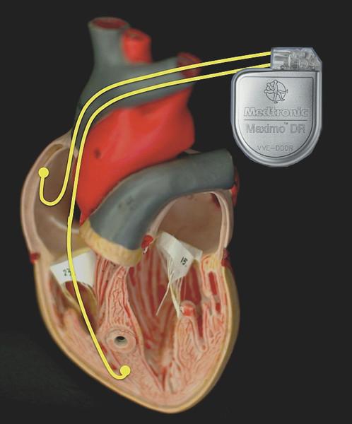 Herzschwäche Behandlung